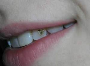 Украшение-зубов-бриллиантами-стразами-скайсами-и-твинклами-8
