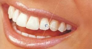 Украшение-зубов-бриллиантами-стразами-скайсами-и-твинклами-2