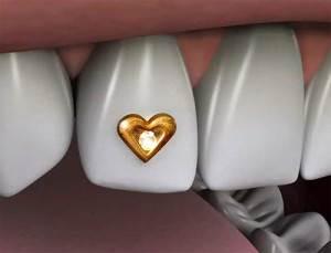 Украшение-зубов-бриллиантами-стразами-скайсами-и-твинклами-6