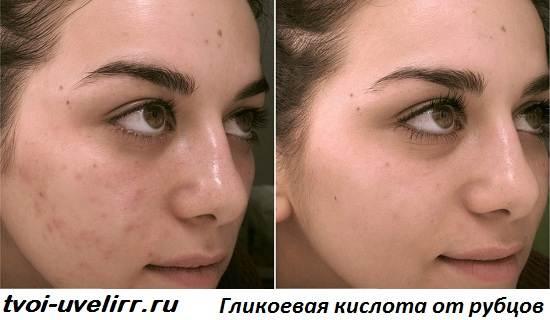 Гликолевая-кислота-Свойства-и-применение-гликолевой-кислоты-2